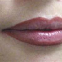 sonrası/dudak kontur